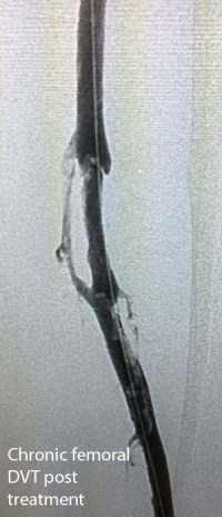 bonau-stent-2-chronic-femoral-dvt-post-treatment-copy