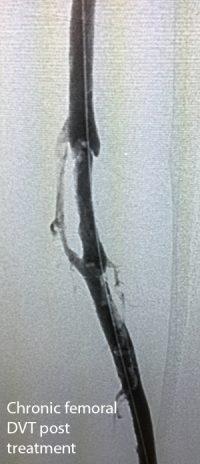 bonau-stent-2-chronic-femoral-dvt-post-treatment-copy